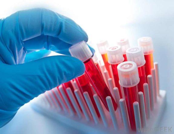 Scoala de vara hematologie
